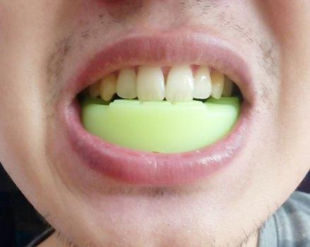 Review: ซิลิโคนครอบฟัน แบบล็อคฟัน