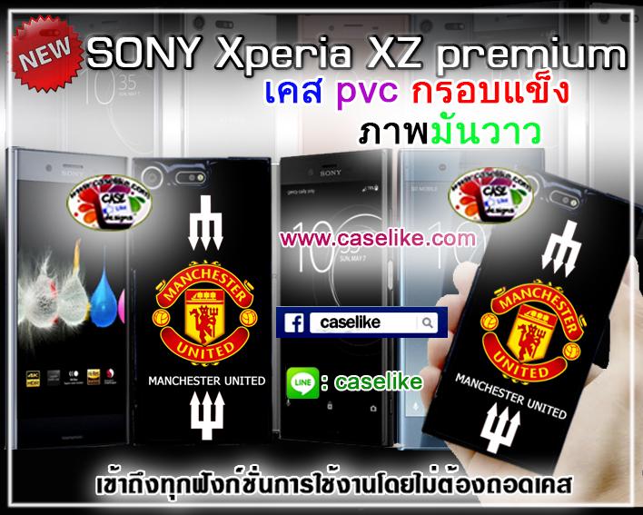 case sony xperia xz premium ภาพคมชัด มันวาว สีสดใส กันกระแทก
