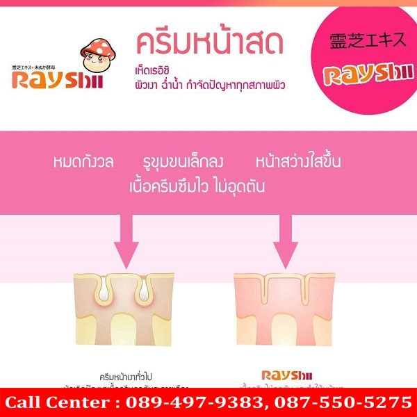 rayshi cream